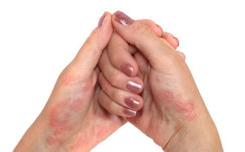 手部湿疹的发生与哪些因素有关?