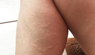 哪些不良因素可能造成荨麻疹?