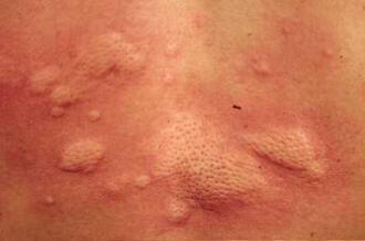 急性荨麻疹有哪些危害?